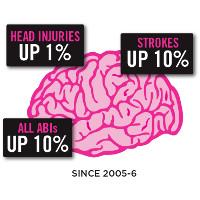 brain-injury-stats-2018-brain